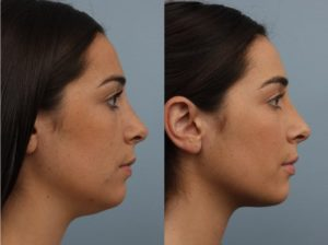 female patient before and after receiving the non-surgical Kybella treatment to remove excess fat under the skin